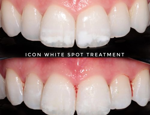 White Spot Treatment Rugby